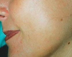 Acne na behandeling
