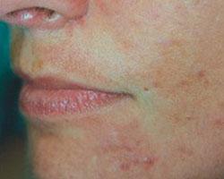 Acne voor behandeling